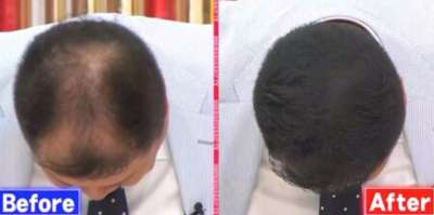 瞬間増毛スプレーCAX(カックス)ブラマヨ小杉の毛がフサフサに!